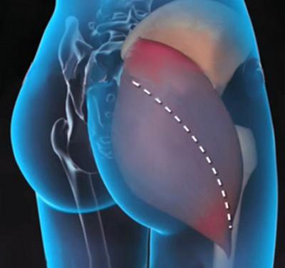 hogyan lehet gyorsan eltávolítani a fájdalmat a csípőízületekben a térd ízületi gyulladásának leghatékonyabb gyógyszere