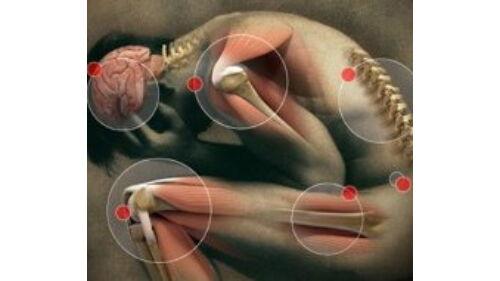 deformáló artrózis diagnosztizálása és kezelése