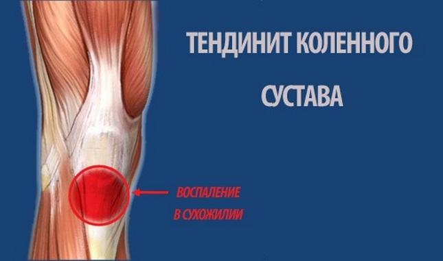 Fájdalom és nyikorgás a térdízületekben. A térdfájás lehetséges leggyakoribb okai