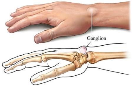 ízületi fájdalom a kéz törése után