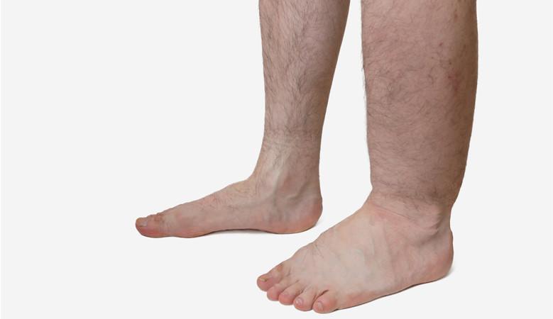 a láb artrózisának kezelése a kórházban
