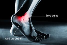 a bokaízület szinovitisa sérülés után
