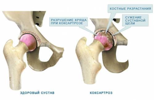 a csípőízület coxarthrosisának oka