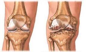 térdfájdalom 36 év sóska tinktúra ízületi fájdalmak esetén
