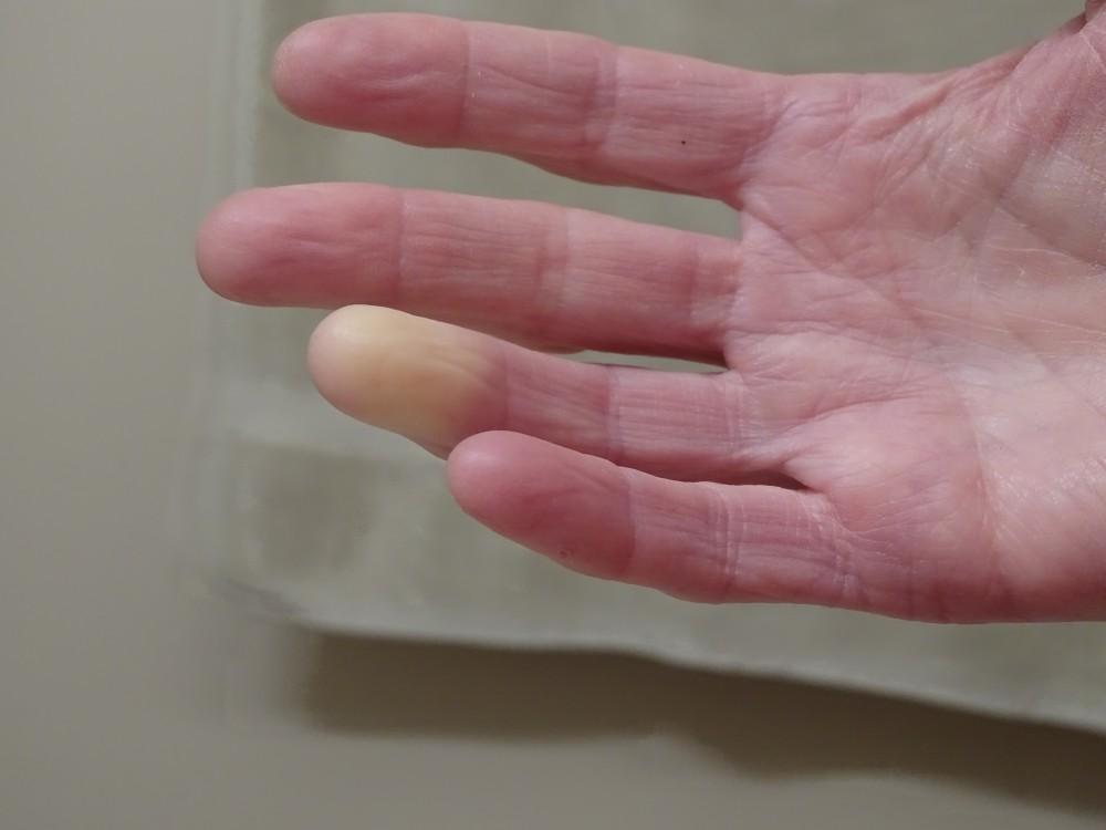 a kezek ujjízületei fájnak, mint a kezelés
