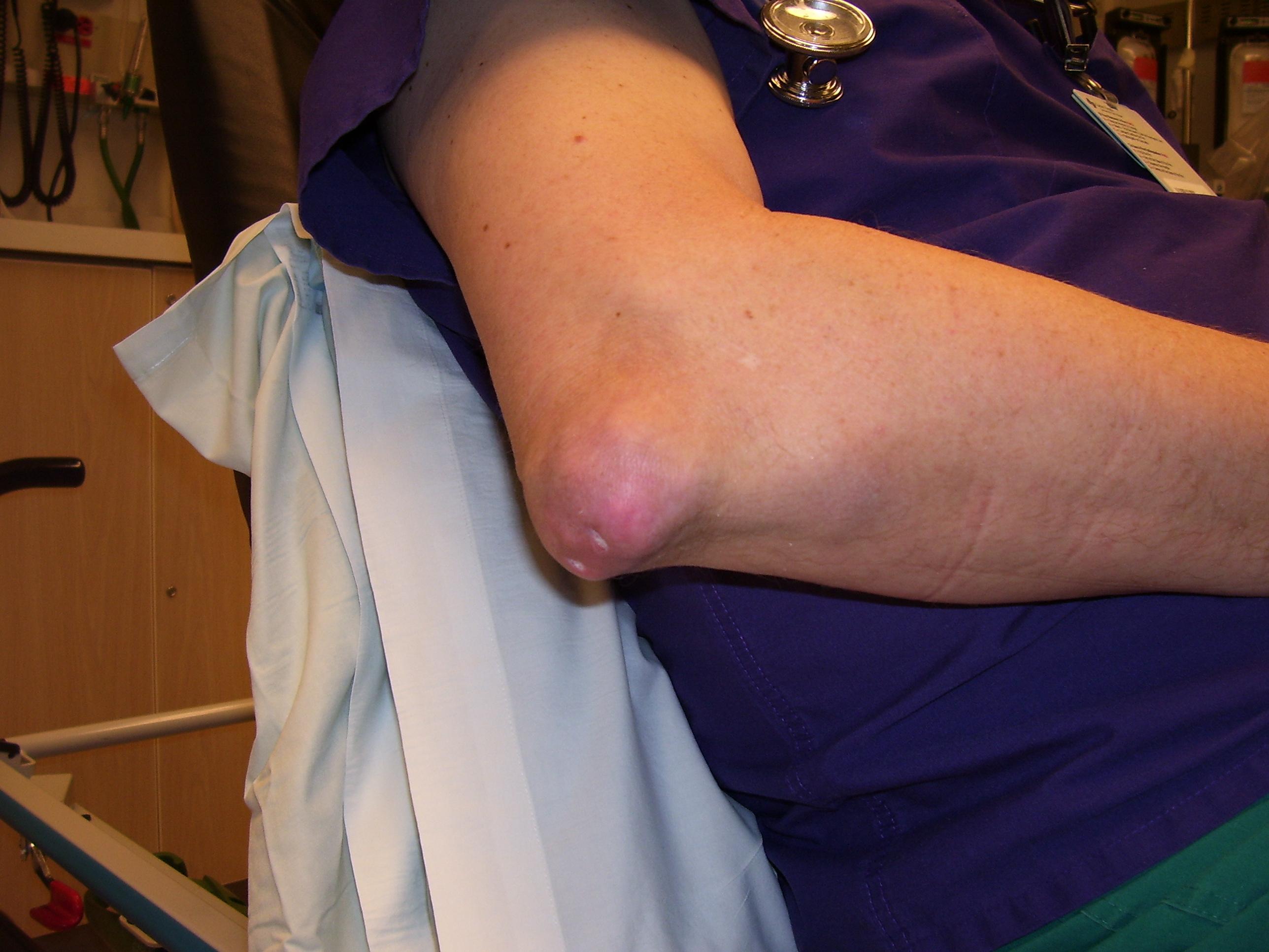 zsibbadt kezek artritisz ízületek kezelésére szolgáló gyógyszerek