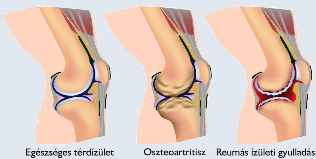 hogyan kezelik a bokaízület artrózisát