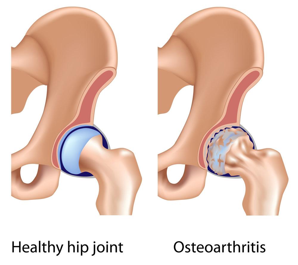 csípő coxarthrosis és kezelés