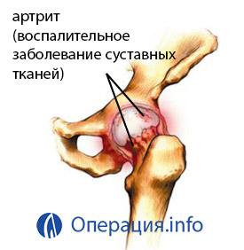 posztoperatív fájdalom a csípőpótlás után turmalin az artrózis kezelésében