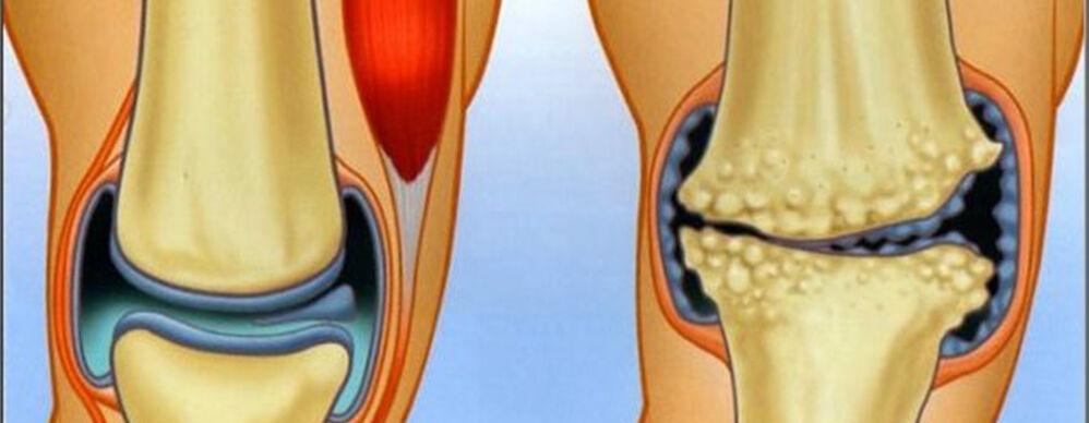 ízületi fájdalom időskorúaknál belső térdfájdalom