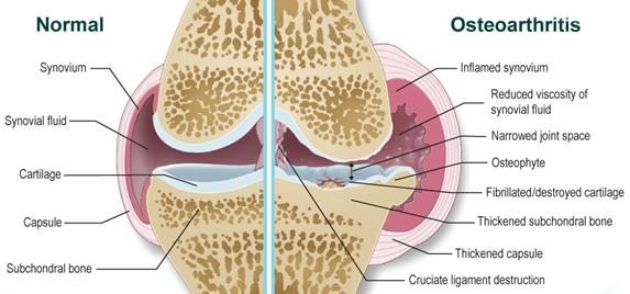 ízületi fájdalom rotavírussal törés a bokaízületben