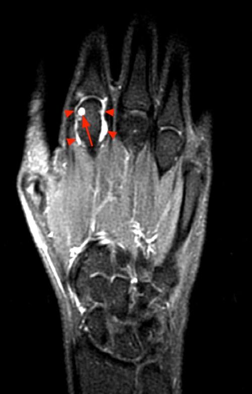 rheumatoid arthritis radiology mri folyadék halmozódik fel az ízületi kezelés során