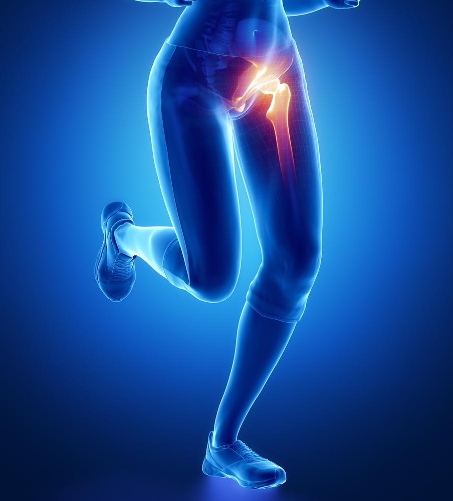 fájdalom csípőízület