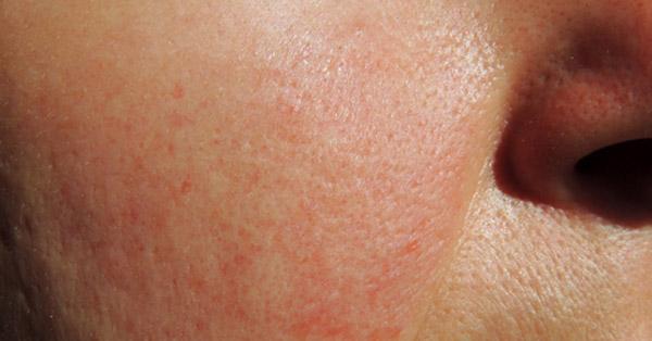 hogyan kezeljük az ízületet az arcon ízületi fájdalomcsillapító folyadék
