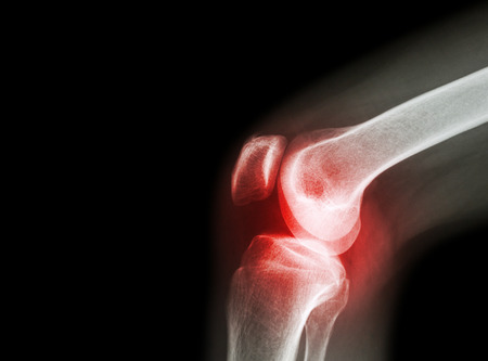 Az ízületek arthrosisának kezelése őssejtekkel - Csukló July
