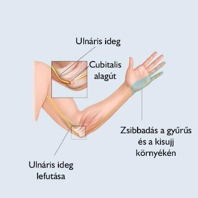 könyök sprain kezelése