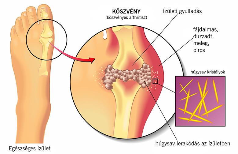 krónikus könyökízület a kis lábujjízület gyulladása
