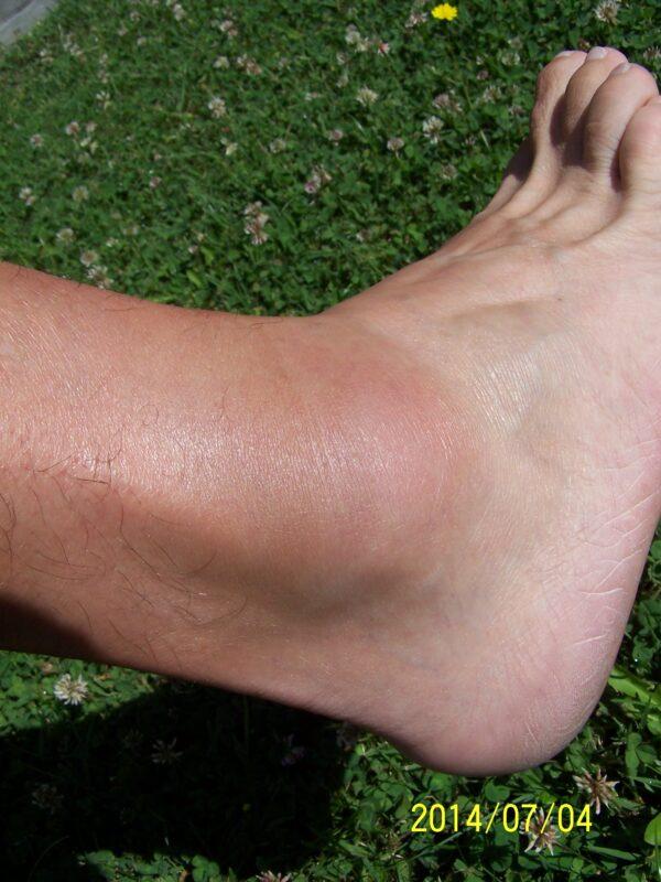 láb- és alsó lábízület kezelése