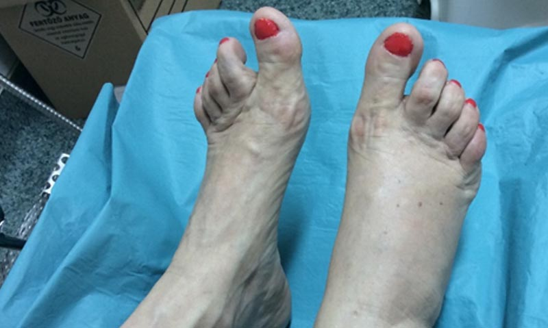 ízületek kezelésére szolgáló gyógyszerek fájdalom a kéz csuklójában