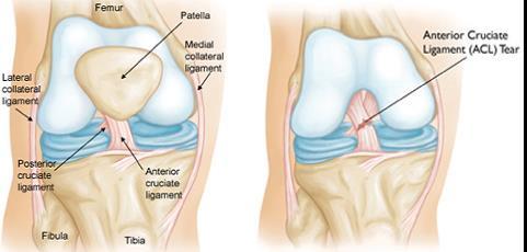 mágneses kezelés térd artrózisához hogyan kezeljük a lábujjízületi gyulladást