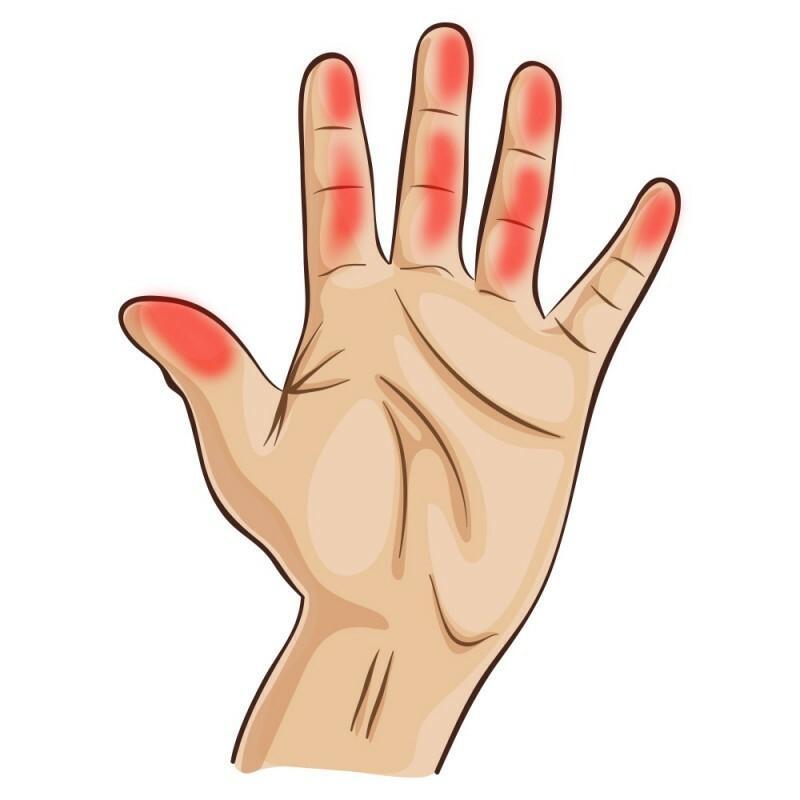 hüvelykujjízület sérülése vállízület sérülések