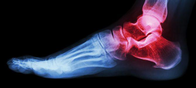 térdízület és annak betegségei fájó lábfej
