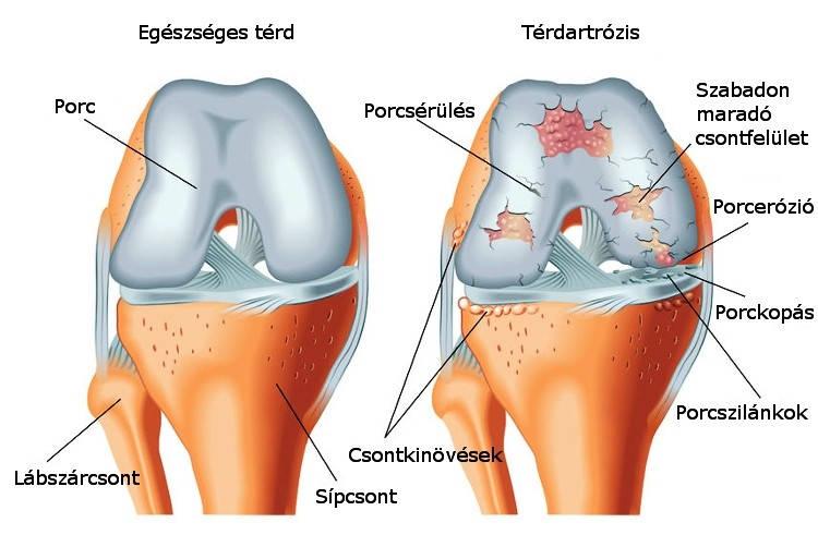 a vállízület deformáló ízületi gyógyszeres kezelése