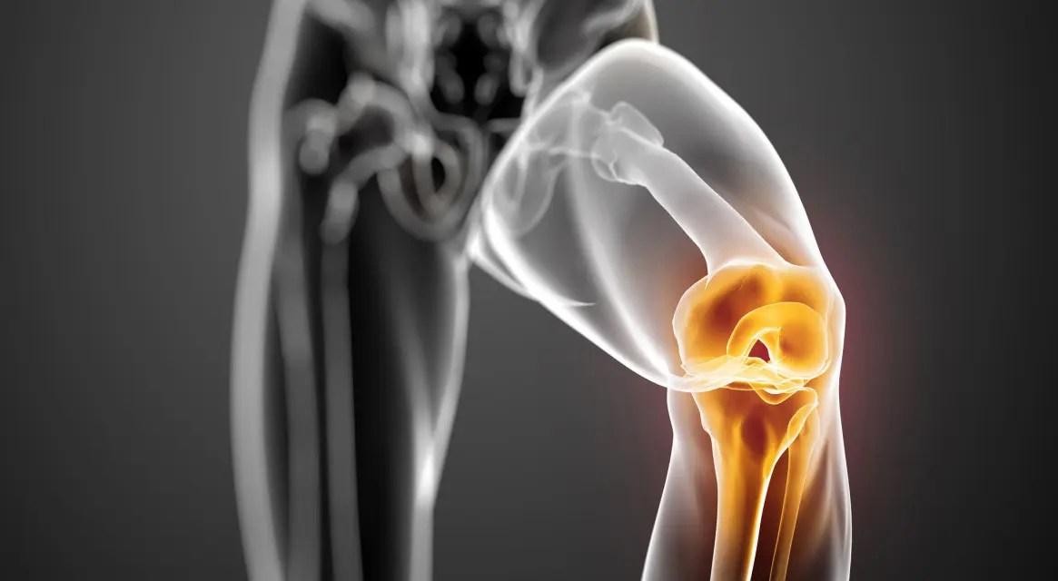 a lábak ízületeinek fájdalma sétálni fáj deformáló térdízületi osteoarthrosis kezelés 3 fokkal