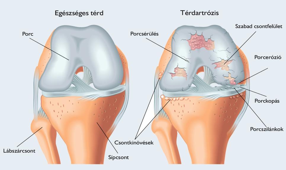 térdízület éles fájdalma