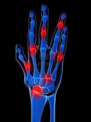 ujjperc fájdalom antibiotikumok ízületi fájdalmak kezelésére
