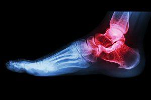 ízületi bokák kezelése váll artritisz gyógyszeres kezelés