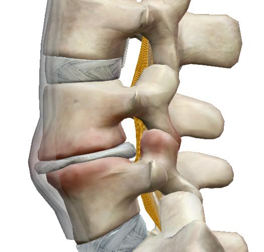 ízületi fájdalom gerinc sérülések miatt a szalagok és ízületek erősítésének legjobb módja