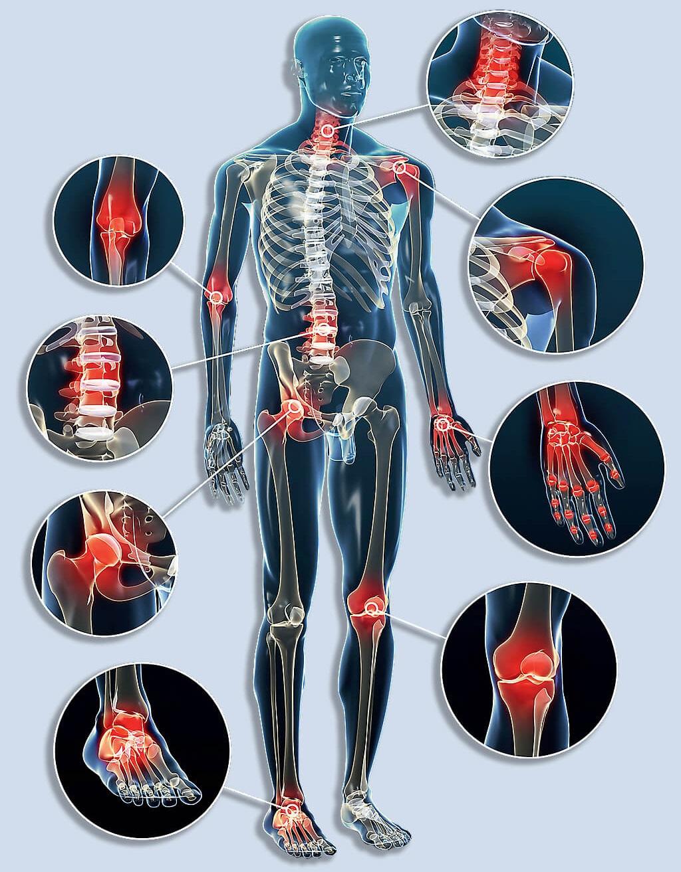hogyan kezeljük a 2. fokú artrózist